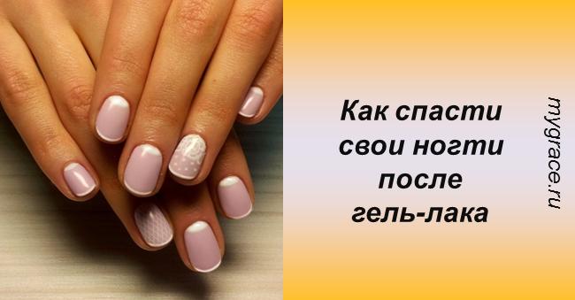 ТОП-10 советов, которые помогут спасти ногти после гель-лака!