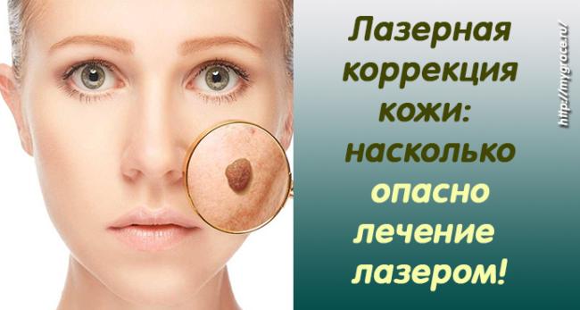 Лазерная коррекция кожи: насколько может быть опасно лечение и коррекция лазером?