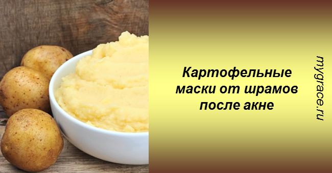 Убираем шрамы от акне быстро и дешево с помощью картофельных масок