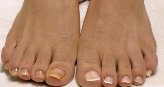 Почему желтеют ногти на ногах и как с этим бороться